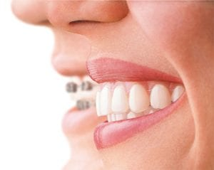 Invisalign Bristol - Invisible Braces Treatment - High Street Dental Clinic