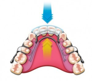 Inman Aligner  Treatment - High Street Dental Clinic